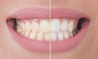 Branqueamentos Dentarios Branqueamento De Dentes